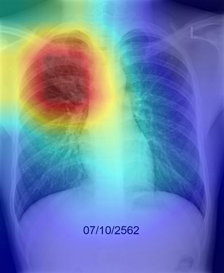 ระบุบริเวณในภาพถ่ายเอกซเรย์ทรวงออกเป็นเฉดสี (Heat Map)