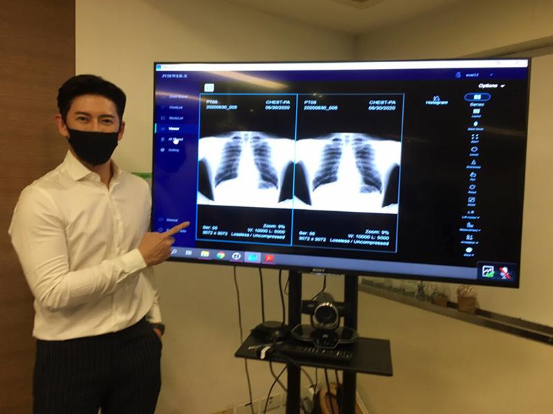 ทีเซลส์ จับมือเครือรพ.พญาไท-เครือรพ.เปาโลและเอกชนพัฒนา AI ตรวจคัดกรองโรคปอดอักเสบจากเชื้อ COVID-19